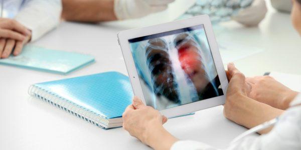 為抽煙的同仁,免費做CT篩檢